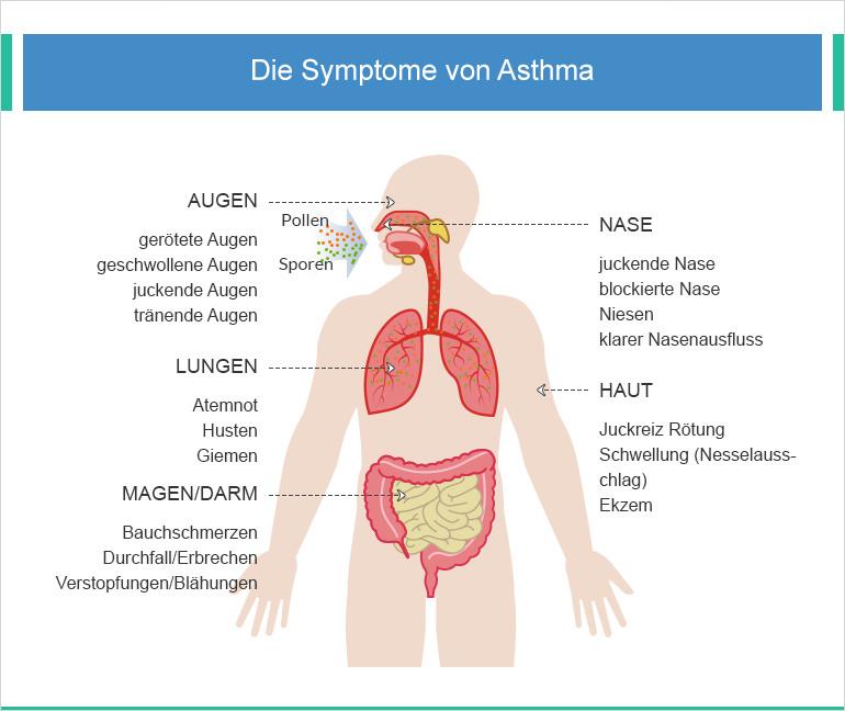 Anzeichen von Asthma bronchiale