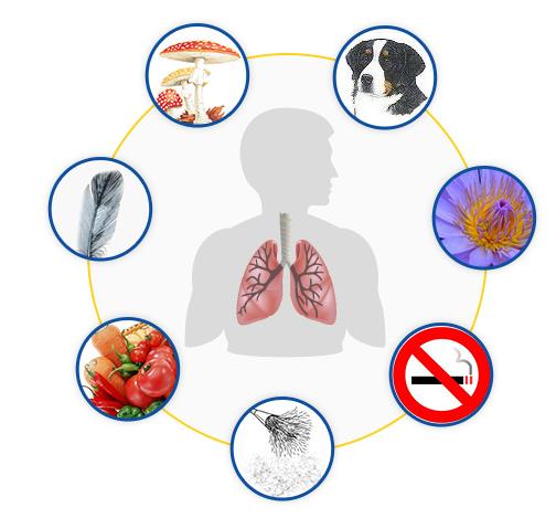 Asthma-Auslöser