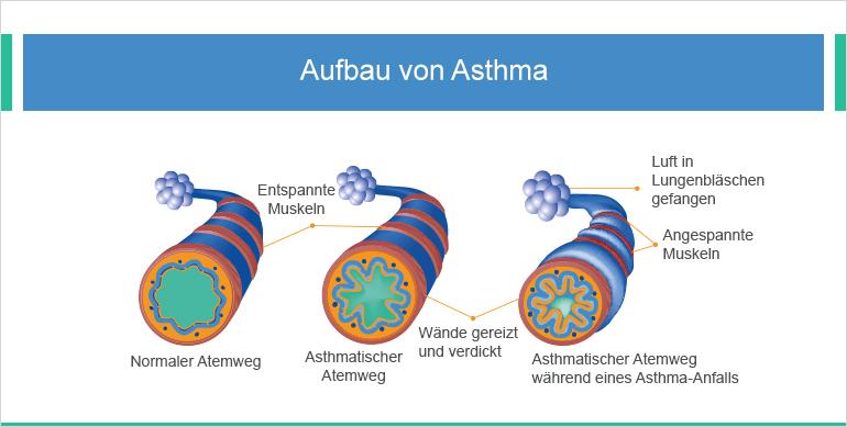 Asthma bronchiale aufbau